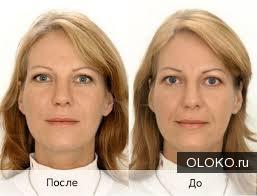 Гиалуроновая кислота в косметике.